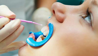 Фторирование зубов — покрытие фторлаком