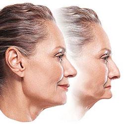 Благодаря протезированию лицо станет выглядеть моложе