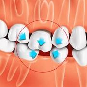 Зубы перестанут смещаться